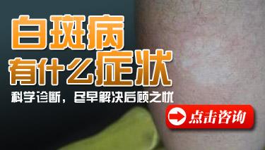 白癜风发病会出现哪些症状