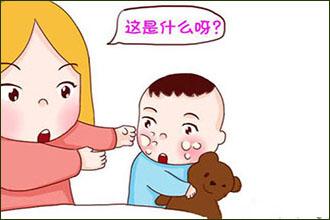 六岁熊孩子患白癜风的症状有哪些